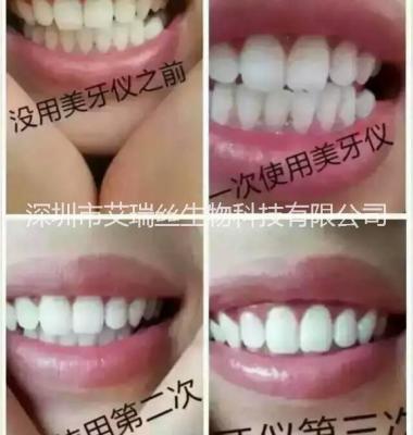 牙齿美白仪图片/牙齿美白仪样板图 (2)